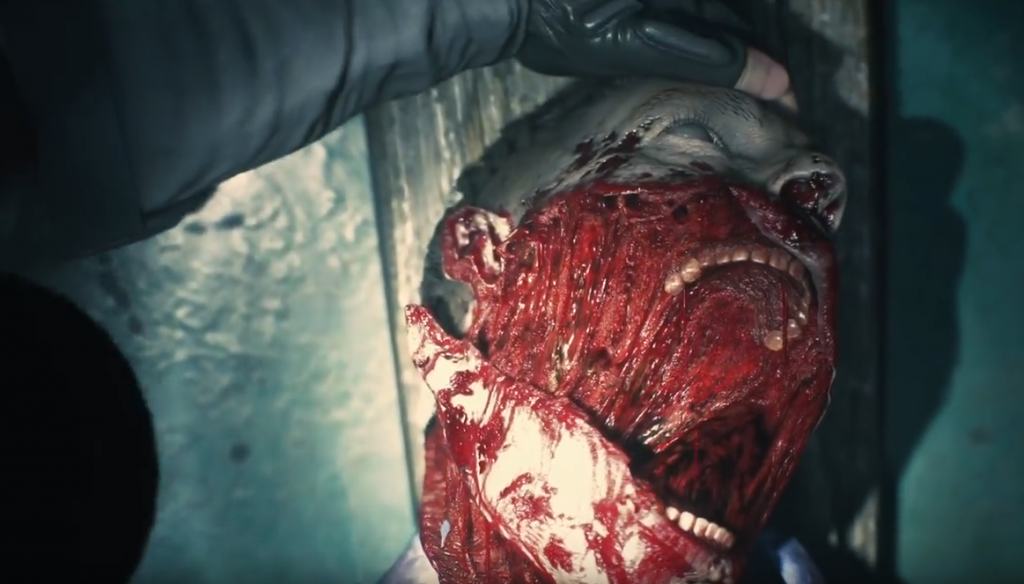 Imagem de um cadáver com parte da boca exposta